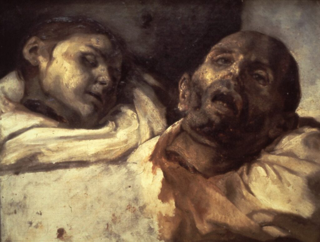 «Severed Heads,» Theodore Jericho